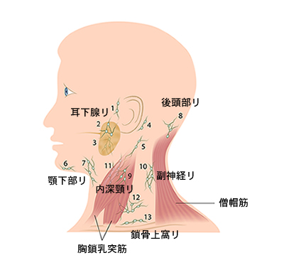 リンパ節腫脹
