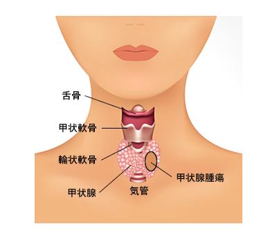 甲状腺腫瘍